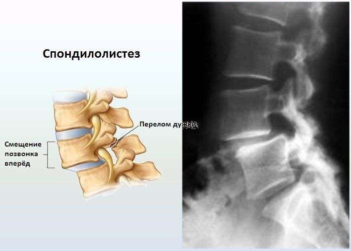 spondylolthesis Spondylolisthesis occurs when a vertebra slips forward out of alignment learn how upmc can treat this painful condition.