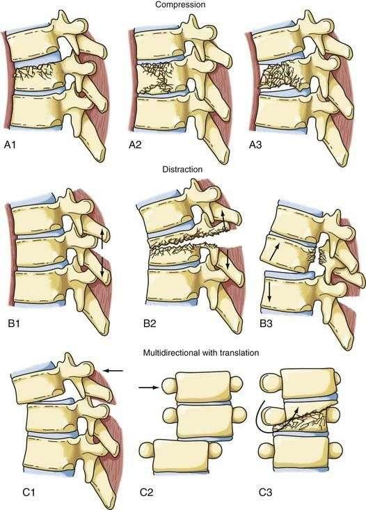 Травма грудного и поясничного отделов позвоночника