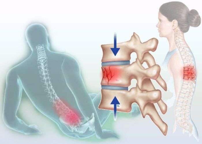 Травмы грудного и поясничных отделов позвоночника thumbnail