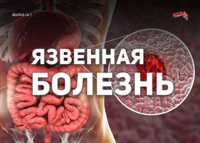 Язвенная болезнь: теории