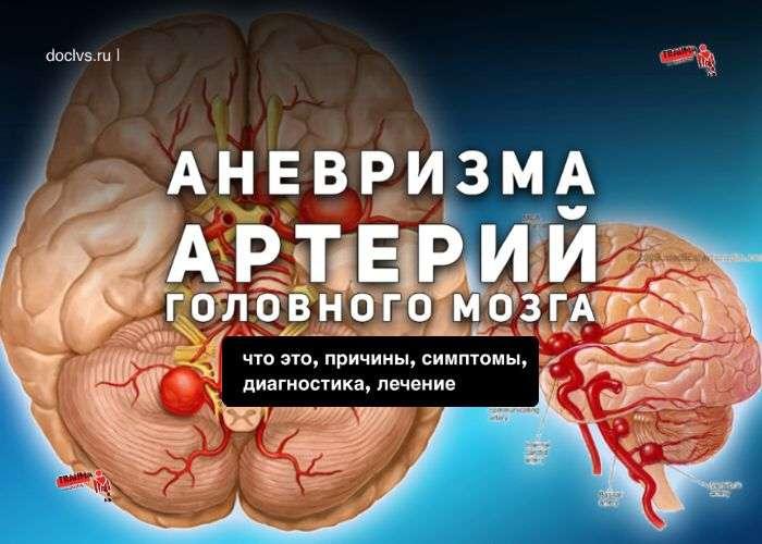 Аневризма артерии головного мозга
