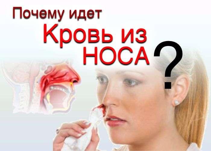 От чего кровь из носа идет у беременной 33