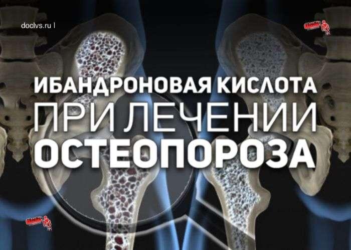 Ибандроновая кислота в лечении остеопороза
