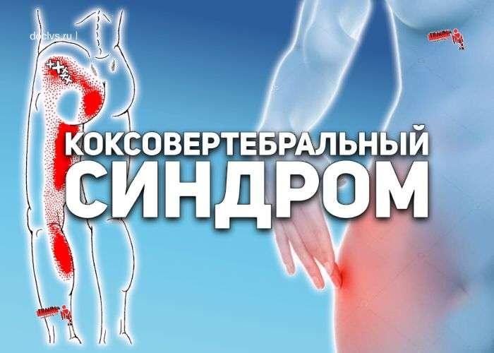 hip-spine syndrome синдрома «тазобедренный сустав — позвоночник»