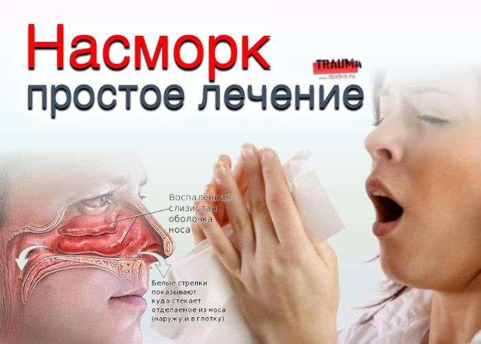 Насморк: простое лечение
