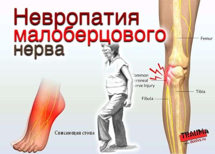Невропатия малоберцового нерва
