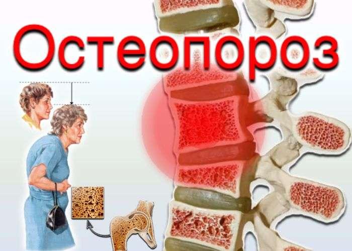 Остеопороз - новое в лечении