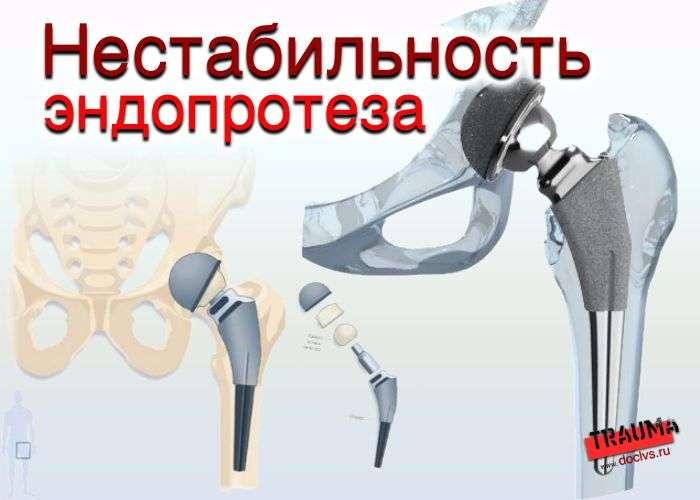 боль посте протезирования сустава
