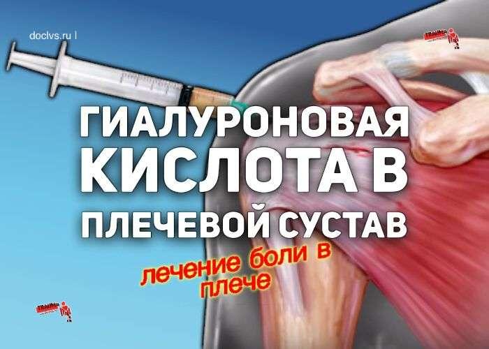 гиалуроновая кислота в плечевой сустав