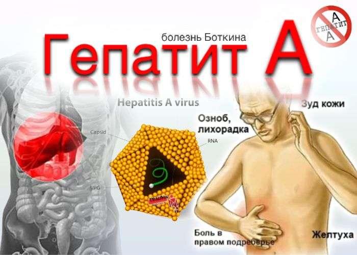 Проявления гепатита а картинки