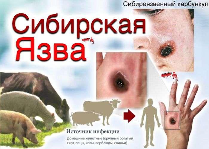 Сибирская язва