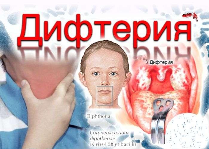 Дифтерия: причины, симптомы, лечение, профилактика
