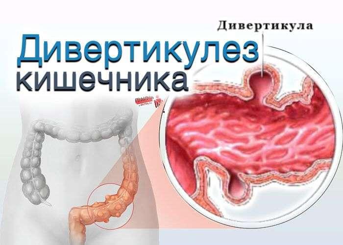 дивертикул кишечника