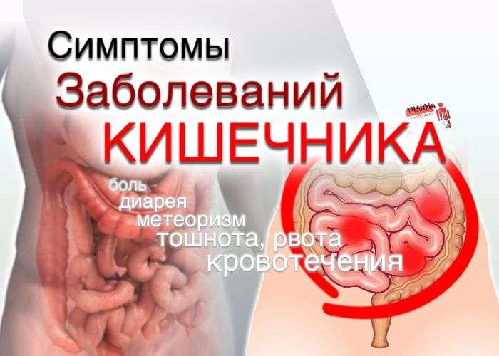 Симптомы заболевания кишечника
