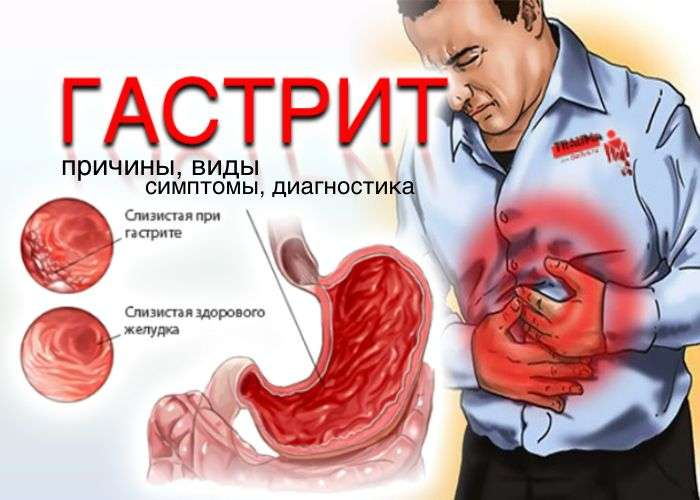 Гастрит: причины, симптомы, диагностика