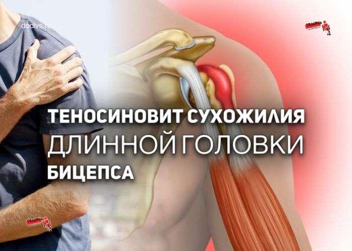 Теносиновит сухожилия длинной головки бицепса