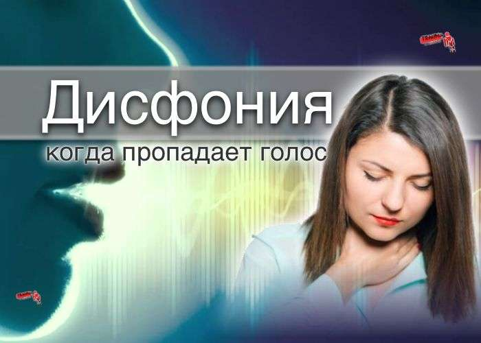 Дисфония: причины, симптомы, лечение