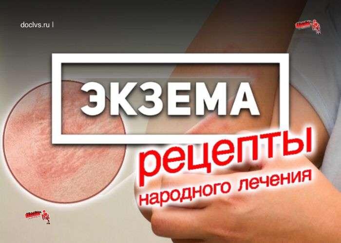 экзема народное лечение
