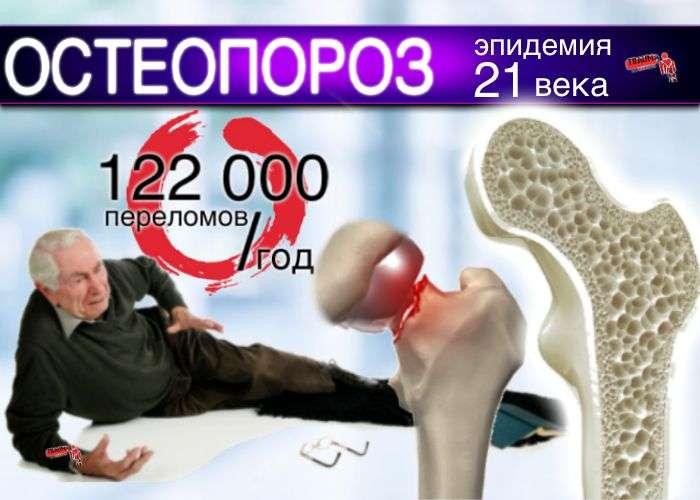 остеопороз скоытая эпидемия
