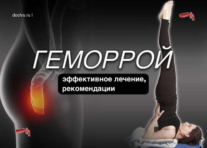 Геморрой: упражнения