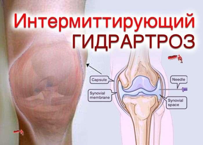 гидрартроз