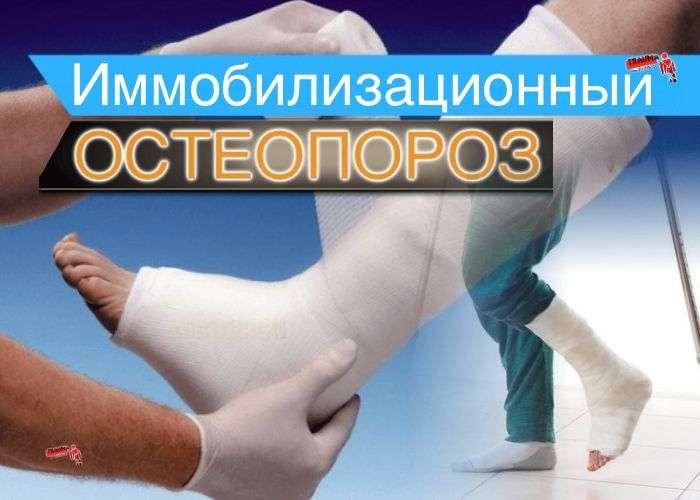 Иммобилизационный остеопороз