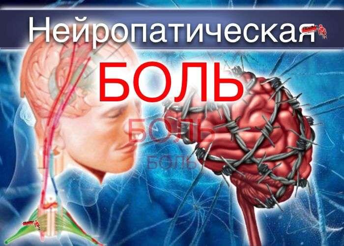 Нейропатическая боль - диагностика, правило - «Три «С»