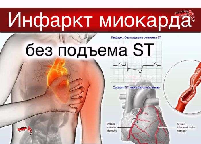 инфаркт миокарда без подъема st