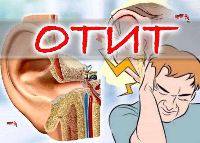 Отит - лечение, фитотерапия
