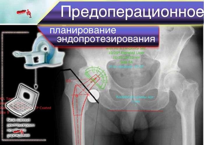 Цифровое планирование эндопротезирования