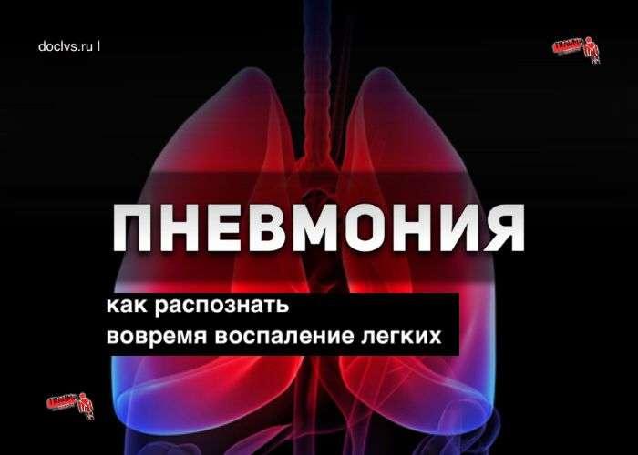 Пневмония: как распознать