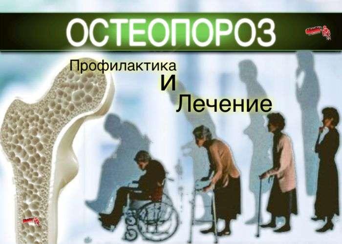 остеопороз профилактика и лечение