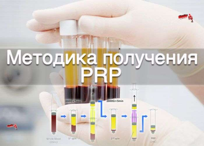 Методика получения PRP