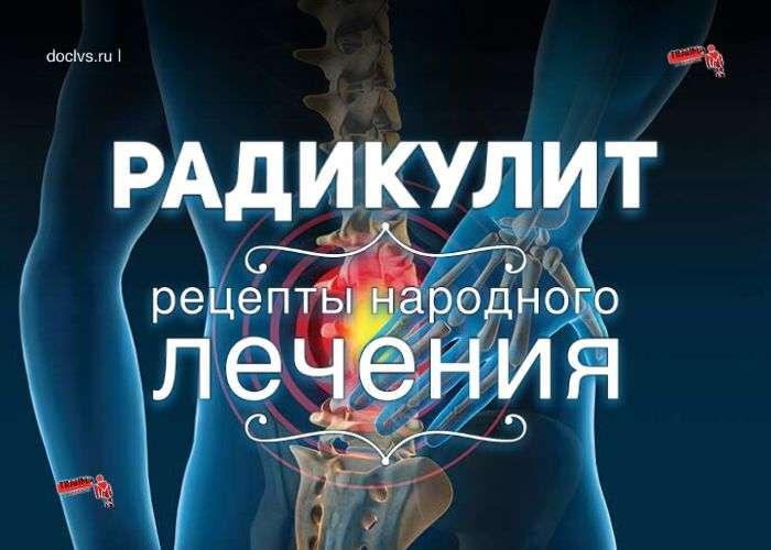 Радикулит: народное лечение