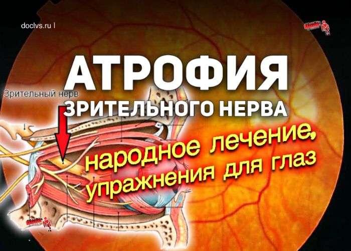 птрофия зрительного нерва