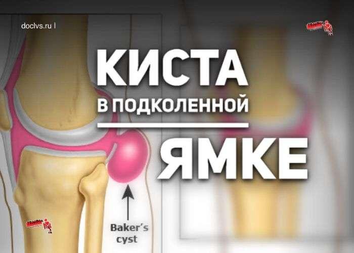 Киста Бейкера (Беккера): что это, какие причины, симптомы, диагностика, методы лечения кисты в подколенной ямке