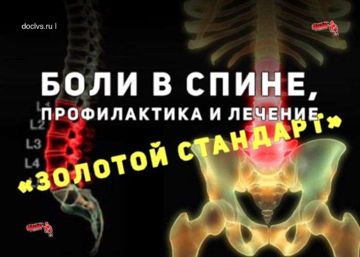 боль в спине золотой стандарт лечения