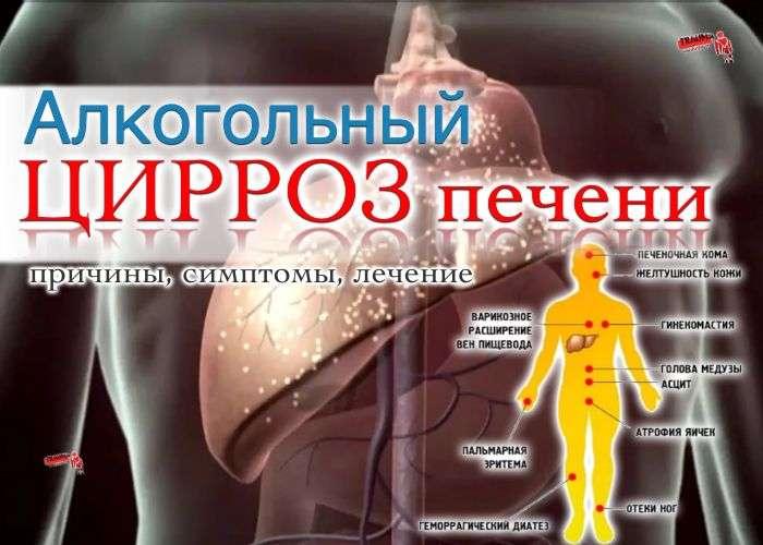 Алкогольный цирроз печени - причины, симптомы, диагностика, лечение