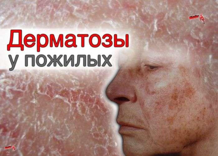 заболевания кожи у пожилых
