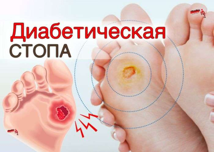 Диабетическая стопа - причины, стадии, фото, лечение