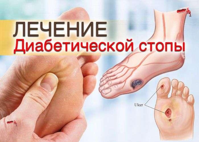 Лечение диабетической стопы - методы, таблетки, физиолечение, профилактика