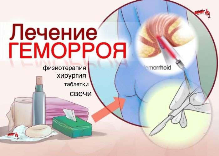 геморрой лечение без таблеток