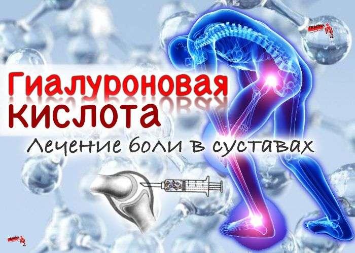 Ферматрон - препарат гиалуроновой кислоты, результаты применения