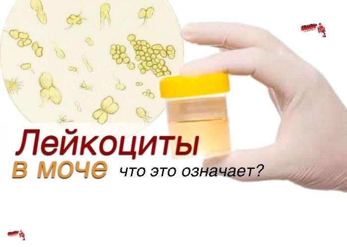 Лейкоциты в моче (лейкоцитурия): причины, что это означает?