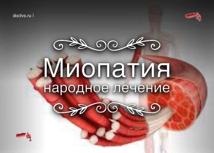 миопатия народное лечение