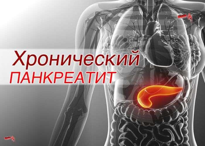 Хронический панкреатит (ХП): факторы риска, диагностика, лечение