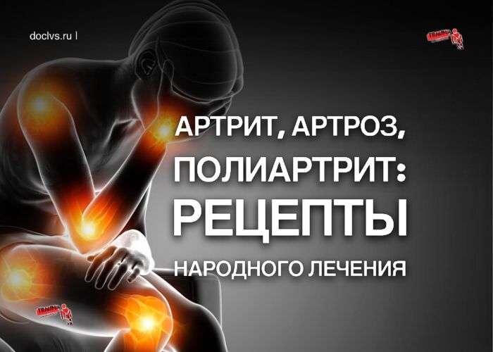 Артрит, артроз, полиартрит