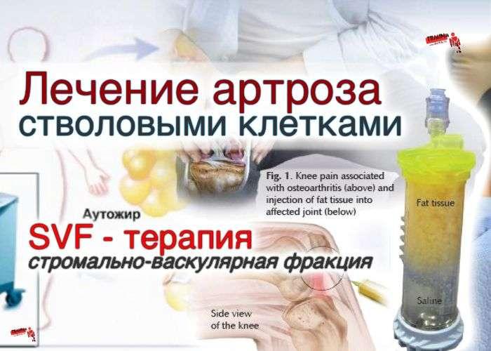 Остеохондроз лечение озокеритом