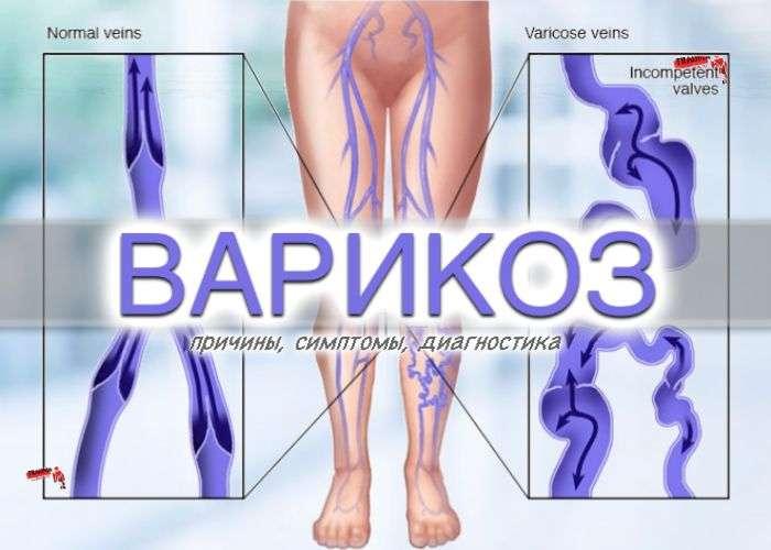 Варикозная болезнь - причины, симптомы, диагностика
