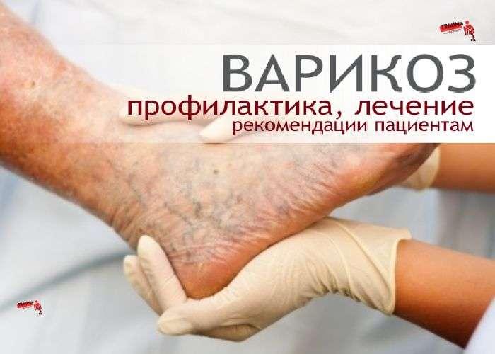 Варикозная болезнь - профилактика, лечение, рекомендации пациентам